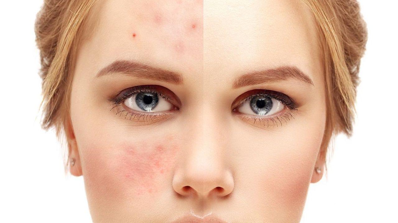 Najlepsze zabiegi dla tlustej cery zabiegi na twarz Medycyna estetyczna zabiegi cena