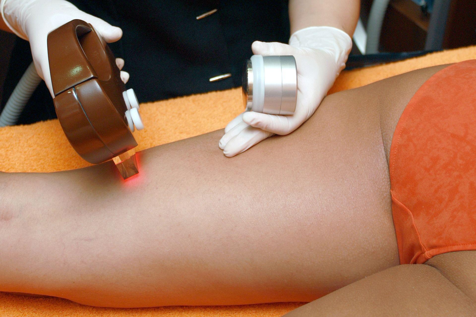 poznaj mozliwosci zabiegow laserowych zabiegi na cialo zabiegi na twarz medycyna estetyczna zabiegi cena